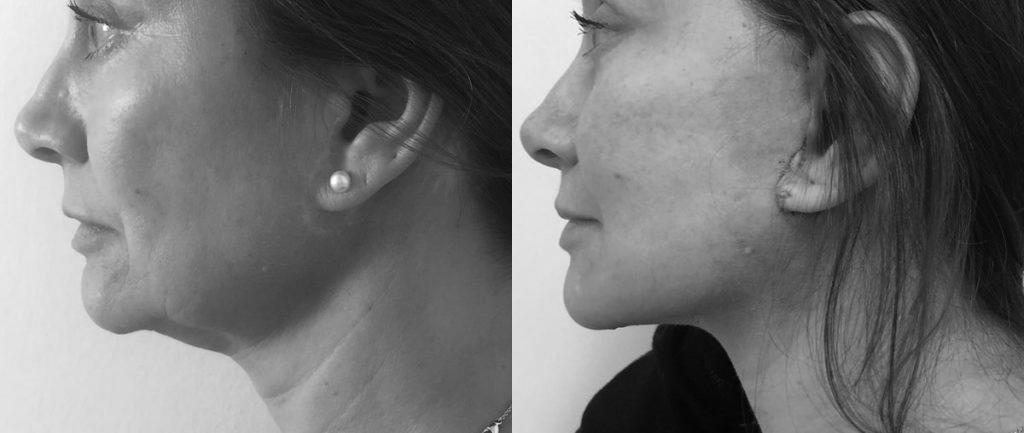 Foto prima e dopo fili di sospensione