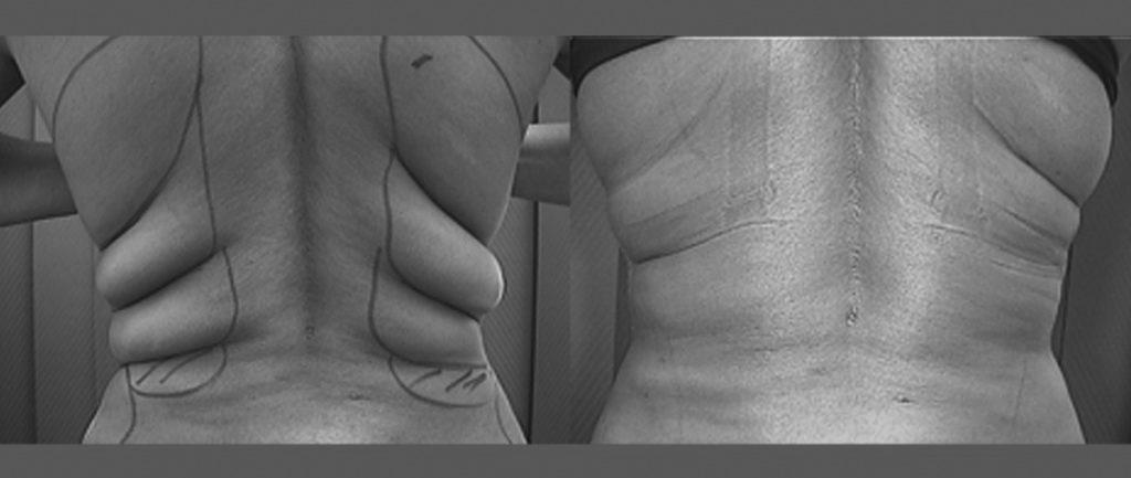 Foto prima e dopo liposuzione